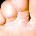 Athlete's Foot / Fungal Infections